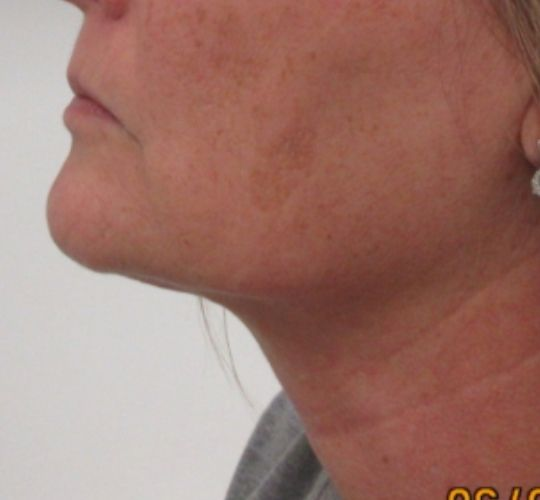 Skin Tightening Kansas City